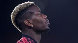Paul Pogba Bagai Kepingan PSG yang Hilang