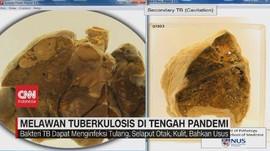 VIDEO: Melawan Tuberkulosis di Tengah Pandemi