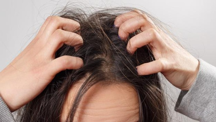Ini Kesalahan yang Menyebabkan Rambut Kamu Jadi Kutuan!
