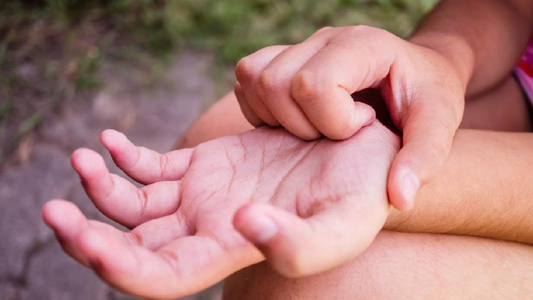 itchy palms, Children are itching palm, The child is scratching his hand due to itching, A child scratching his hand, The child is scratching his hand because he is itching.