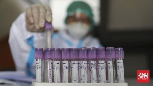 Kasus positif virus corona bertambah 6.279 orang pada hari ini, Jumat (19/3). Sementara pasien positif yang meninggal bertambah 197 orang.