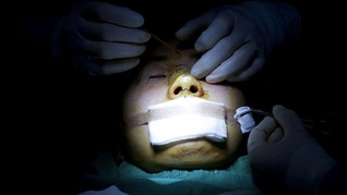 FOTO: Mumpung Pakai Masker, Warga Korsel Buru-buru Oplas