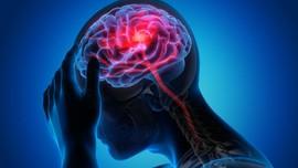 Mengenal Sebab dan Gejala Aneurisma Otak yang Dialami Dr. Dre