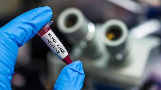 Kemenkes Kerja Sama Lintas Sektor Cegah Virus Nipah Masuk RI
