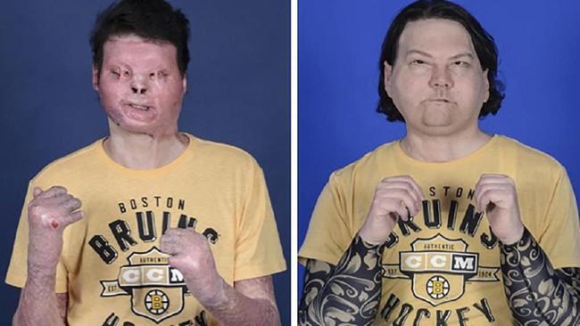 FOTO: Transplantasi Wajah dan Tangan Pertama di Dunia