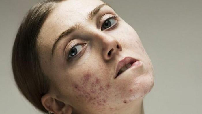 Bahan Aktif Skincare Buat Hempaskan Flek Hitam karena Jerawat
