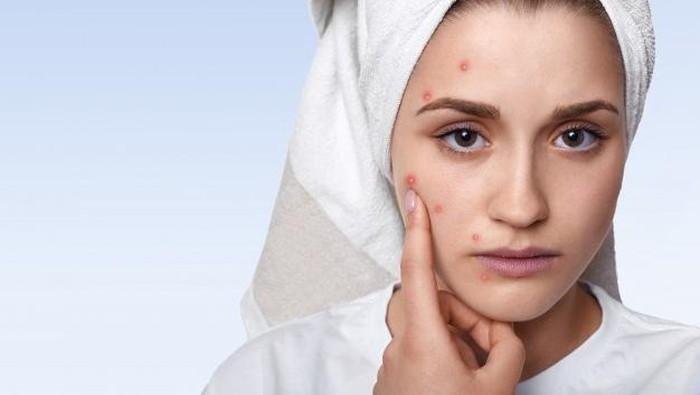 Awas! Skincare dan Makeup Ini Bisa Merusak Kulit Jika Digunakan Setiap Hari