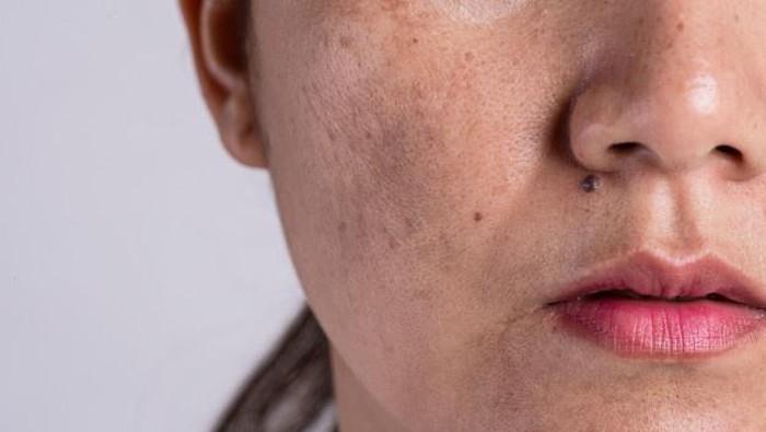 Hati-hati! Ini Deretan Skincare Berbahaya yang Banyak Dijual di Pasaran