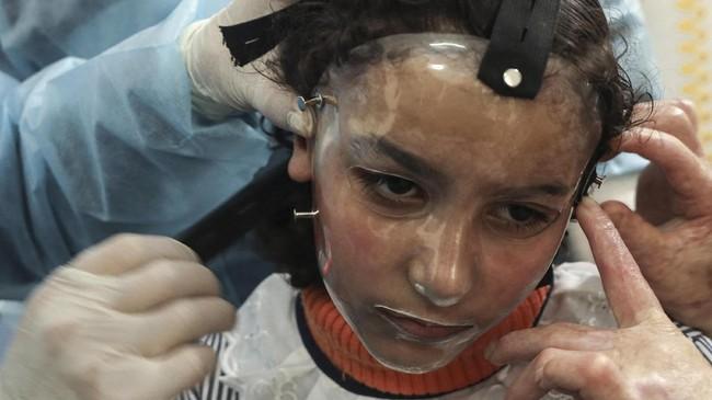 Sejumlah korban kebakaran kamp pengungsi Palestina di Gaza mengenakan masker 3D untuk menyembuhkan luka bakarnya. Masker berperan dalam mempercepat penyembuhan.