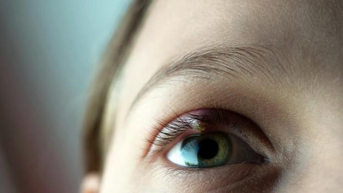 Mata Bintitan di Waktu yang Tidak Tepat? Intip Cara Ampuh Mengatasinya!