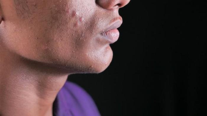 Solusi Ampuh Atasi Jerawat dengan Acne Patch Lambena
