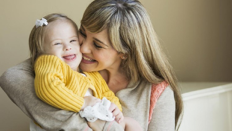 Mother (20s) holding daughter (2 years) with down syndrome.