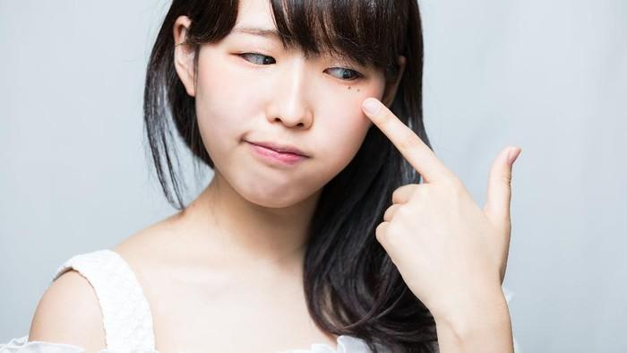 3 Kandungan Skincare yang Ampuh Atasi Kulit Kusam dan Lembut untuk Remaja!