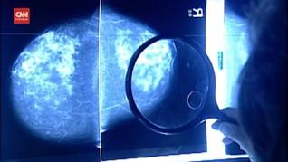 VIDEO: Ahli Sebut Kematian Akibat Kanker Turun pada 2040