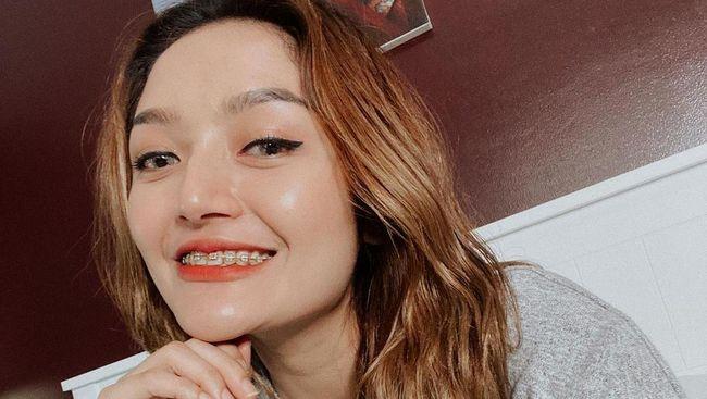 Benarkah Siti Badriah Telah Damai dengan Boy Willi
