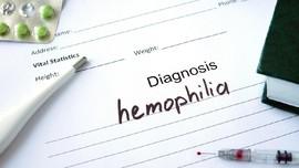 Mengenal Hemofilia, Penyakit yang Membuat Darah Sulit Membeku