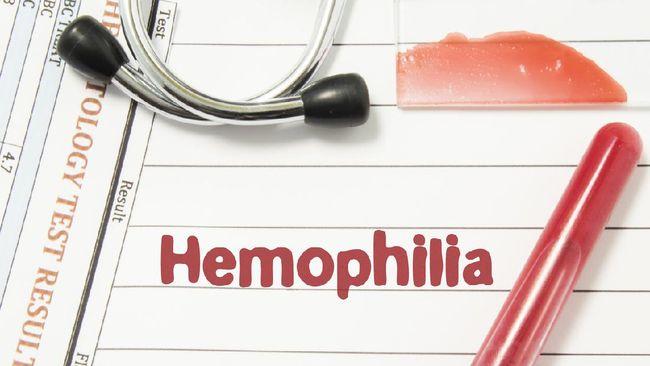 Hemofilia bukan penyakit yang dapat disembuhkan. Tindakan profilaksis menjadi sangat penting bagi pasien hemofilia untuk mencegah pendarahan lebih lanjut.