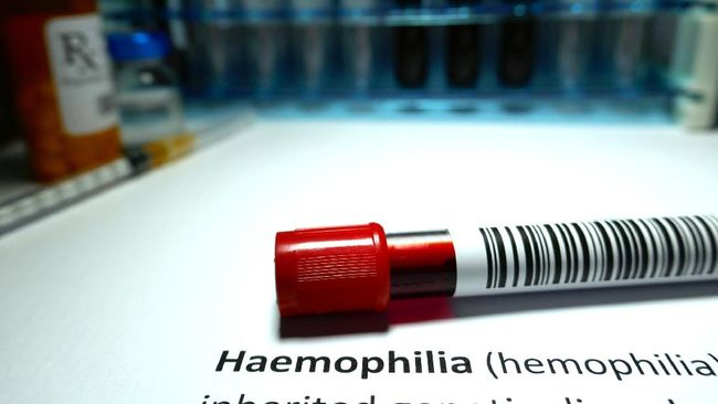 Setiap tanggal 17 April diperingati sebagai Hari Hemofilia Sedunia. Kali ini, peringatan mengambil tema mengenai tantangan akibat perubahan di masa pandemi.