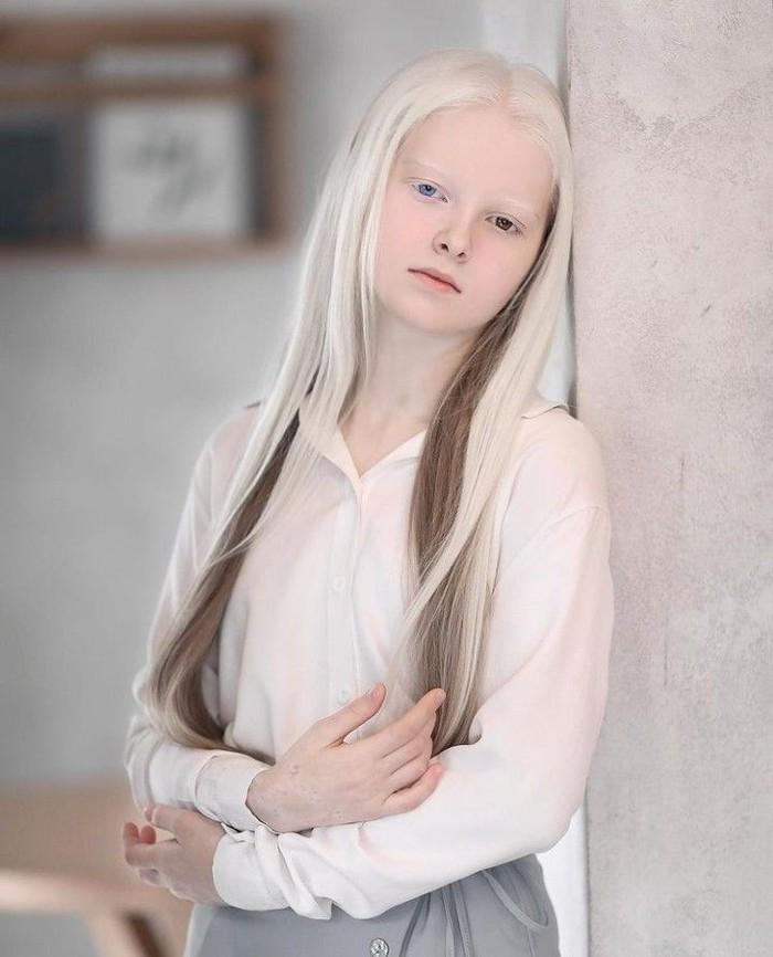 Selain terlahir sebagai albino, ternyata ia tidak hanya mempunyai kelainan satu genetik saja, tapi ia juga mengalami heterochromia (foto: instagram.com/aminaarsakova)
