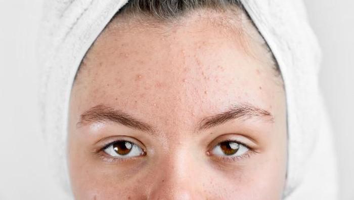 Kesalahan Saat Menggunakan Skincare yang Bisa Membuat Kulit Breakout dan Kusam