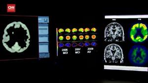 VIDEO: Peneliti Ungkap Efek Covid pada Otak dan Saraf