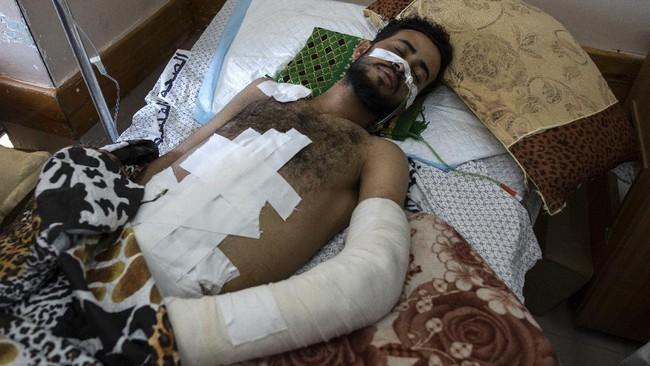 Beberapa pekan lalu, rumah sakit Gaza sedang berjuang melawan pandemi corona. Kini, rumah sakit berjuang merawat korban luka ledakan hingga amputasi.