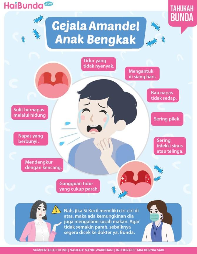 Infografis gejala amandel anak bengkak