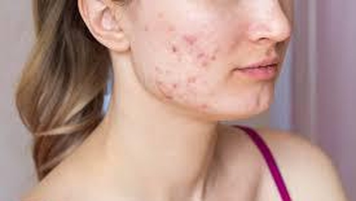 6 Skincare Salicylic Acid Lokal yang Ampuh Mengatasi Jerawat