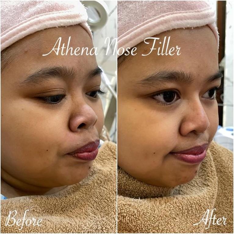 Penampilan Kekeyi Setelah Filler Hidung