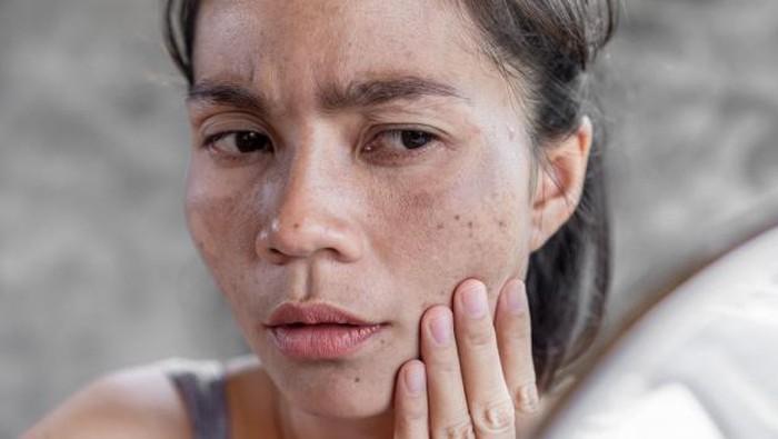 Yuk, Coba 5 Skincare Ini untuk Pudarkan Dark Spots