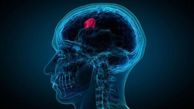 Pendarahan otak terjadi saat pembuluh arteri di otak pecah. Berikut cara mencegah pendarahan otak.
