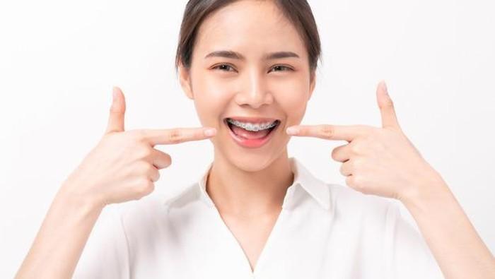Bingung Pilih Warna Behel? Coba 6 Tips Ini Ladies