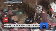 VIDEO: Penderita Tumor Ganas Dirujuk Ke RS