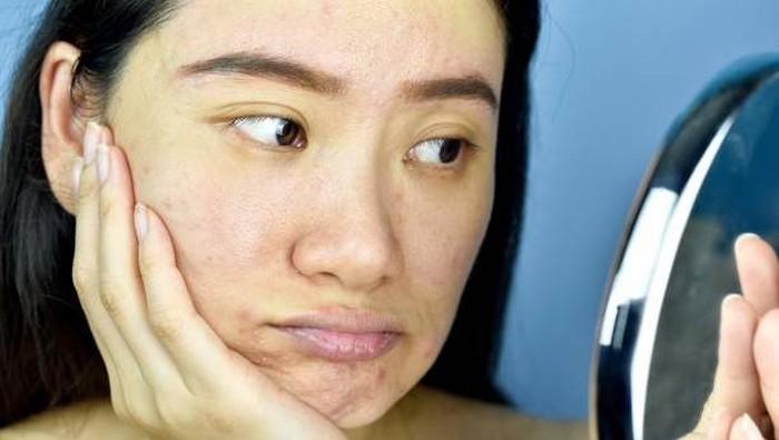 Rekomendasi Produk Skincare AHA BHA Paling Ampuh Buat Angkat Sel Kulit Mati