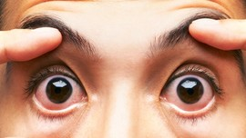 7 Kebiasaan yang Bikin Mata Rusak