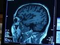 VIDEO: Kontroversi Aduhelm, Obat Alzheimer Asal AS