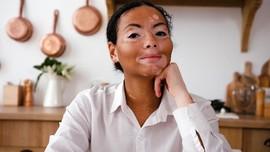 5 Mitos Vitiligo yang Bisa Menghambat Pengobatan