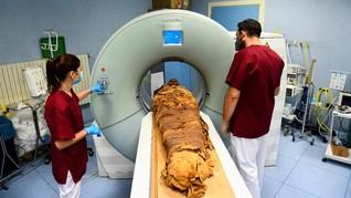 FOTO: Italia Pakai CT Scan untuk Ungkap Rahasia Mumi Mesir