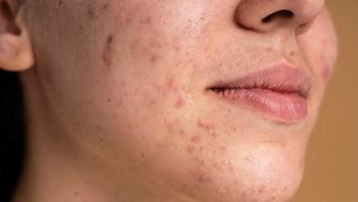 4 Pilihan Skincare untuk Memperkuat Skin Barrier