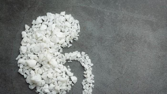 5 Cara Cegah Batu Ginjal, Penyakit yang Sempat Dialami Anang Hermansyah