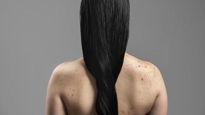 Bukan Cuma Hindari Pakaian yang Ketat, Berikut Trik Jitu Cegah Munculnya Jerawat di Badan