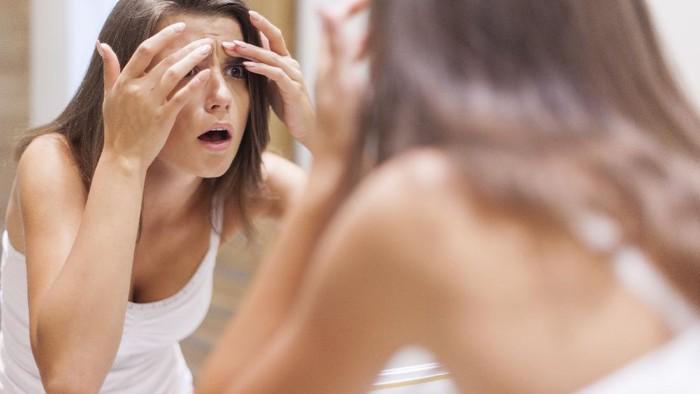 Di Rumah Aja Malah Jerawatan? Ketahui 5 Penyebabnya dan Cara Menghilangkan Jerawat!