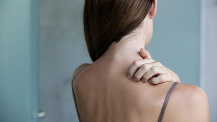 Body Acne Bikin Ganggu, Ini Cara Perawatan dan Rekomendasi Produk untuk Mengatasinya