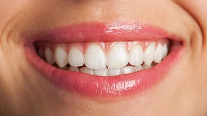 5 Kiat Mudah yang Perlu Dilakukan untuk Mencegah Plak pada Gigi