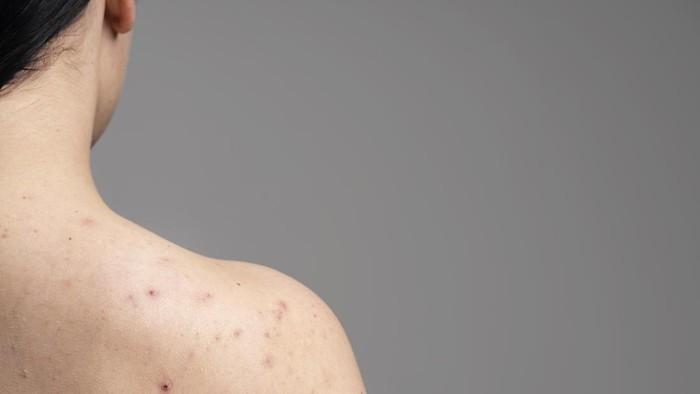 Sering Gatal dan Bikin Nggak Nyaman, Atasi Masalah Jerawat Punggung dengan 4 Skincare Ini