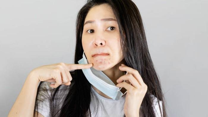 3 Rekomendasi Acne Spot Murah Meriah, Ampuh Atasi Maskne yang Bikin Ganggu