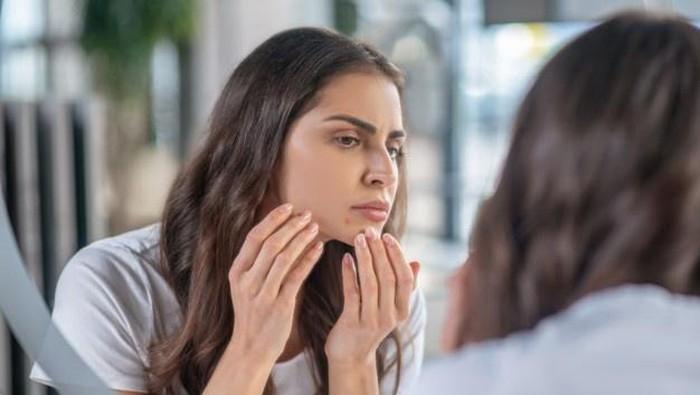 Mitos Atau Fakta, Terlalu Sering Bercermin Bisa Bikin Wajah Jerawatan? Ini Penjelasan Ilmiahnya