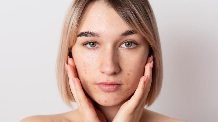 5 Pilihan Skincare Lokal untuk Atasi Jerawat, Wajib Dicoba!