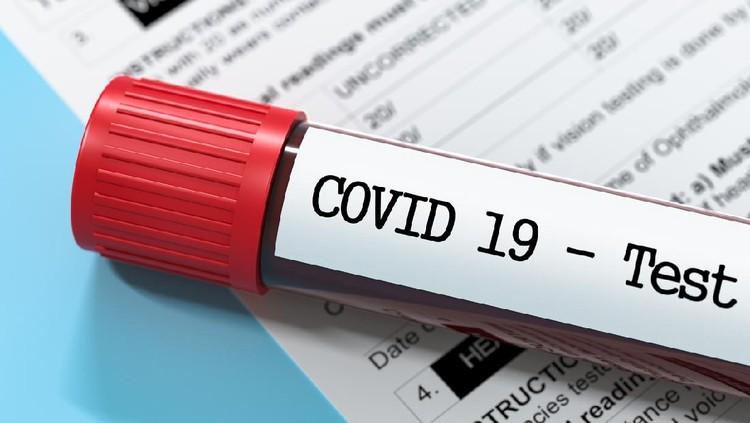 Corona Virus test report Stock Image, Test tube