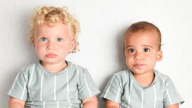 Bayi Kembar Birasial di Inggris
